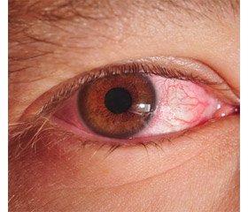 Болезнь Рейтера как проявление кишечных инфекций