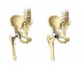 Arthroplasty of the proximal femur for bone tumors