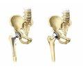 Arthroplasty of the proximal femur for bone tumors