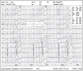 Кардиальные нарушения у пациентов с эпилепсией. Применение леветирацетама в терапии эпилепсии  у пациентов с кардиальными нарушениями