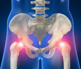 Ортопедическая патология иостеопороз