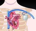 Ученые, используя специальный вирус, успешно восстановили естественный «кардиостимулятор» сердца