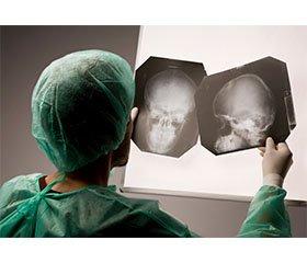 Клінічні та патогенетичні аспекти поєднаної черепно-мозкової та щелепно-лицевої травми