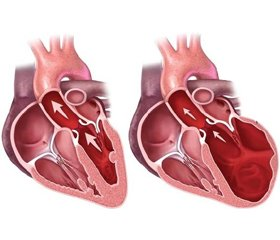 Heart Failure with Preserved Left Ventricular Ejection Fraction