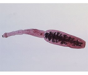 Top of the Most Dangerous Food Parasites