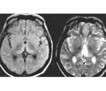 COVID-19-ассоциированная острая геморрагическая некротическая энцефалопатия: особенности КТ и МРТ