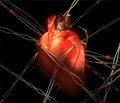 Клінічний випадок саркоми серця