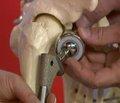 Особливості лікування переломів шийки стегнової кістки у пацієнтів в умовах селенодефіцитного регіону