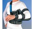 Лечение переломов проксимального отдела плечевой кости
