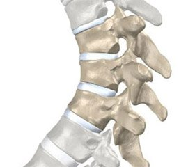 Evaluation of the musculoskeletal system functional state in patients with different variants of the Scheuermann's disease