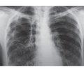 Синдром исчезающего легкого при туберкулезе