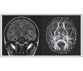 Психоэмоциональные нарушения у пациентов с височной эпилепсией и их морфологическое обоснование