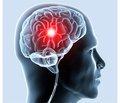 Рекомендации AHA (American Heart Association, Американская кардиологическая ассоциация)/ASA (American Stroke Association, Американская ассоциация по изучению инсульта). Разработанное AHA/ASA в 2015 году специальное обновление рекомендаций 2013 года по ведению пациентов в раннем периоде острого ишемического инсульта в аспекте использования эндоваскулярных методов лечения