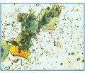 Покращення репаративних процесів після кріолікування патології шийки матки: цитоморфологічне та кольпоцервікоскопічне дослідження