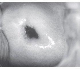 Комплексный подход к лечению вируса папилломы человека у женщин репродуктивного возраста с генитальным эндометриозом