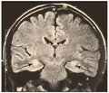 Clinical picture and diagnosis of mesial temporal sclerosis associated with herpes virus infection