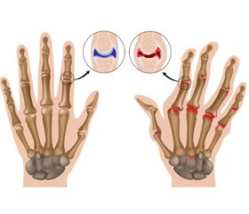 10-year probability of major osteoporotic fractures in women with rheumatoid arthritis by the Ukrainian FRAX model