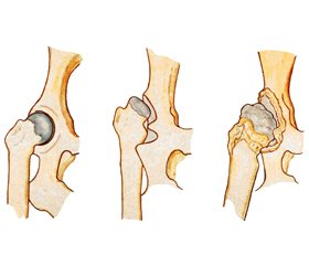 The results of total arthroplasty for developmental dysplasia of the hip