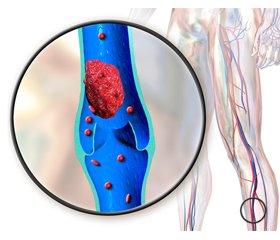 Профілактика венозного тромбоемболізму при хірургічному лікуванні перелому стегнової кістки