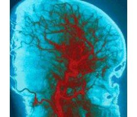 Порушення мозкового кровообігу в жінок знадмірною масою тіла та ожирінням