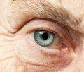 Катаракта: симптоми та причини захворювання