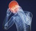 Причини і ознаки ішемічного інсульту