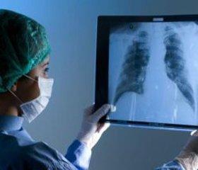 Види цифрової рентгенографії