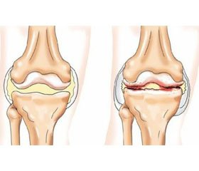 Osteoathritis of large joints in the patients with diabetes mellitus