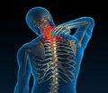 Цефалгический синдром у детей придиспластической нестабильности шейного отдела позвоночника