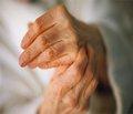 Лазеротерапія у відновному лікуванні хворих на ревматоїдний артрит після виконання артроскопічної синовектомії