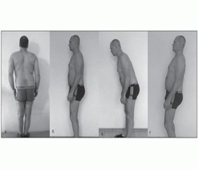 Пояснично-тазовый ритм у больных поясничным остеохондрозом и дегенеративным поясничным спондилолистезом на этапах оперативного лечения