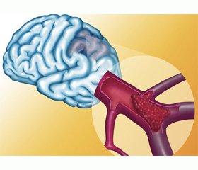 Мигрень с ишемическим инсультом у юноши с гипергомоцистеинемией и соединительнотканной дисплазией