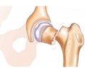 Endocrine osteoporosis