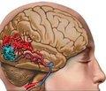 Эпилептический синдром и генерализованные мальформации головного мозга