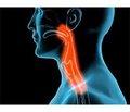 Болевой синдром у лиц с нарушением глотания