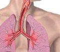 Ектопічний АКТГ-синдром, обумовлений бронхіальним карциноїдом