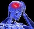 Реабілітація черепно-мозкової травми