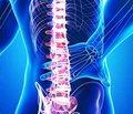 Симптоми та діагностика спинномозкового інсульту