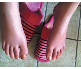 Idiopathic Manifestation of Mitchell's Syndrome (Erythromelalgia) in a Child