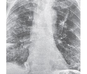 Key aspects in the treatment of severe community-acquired viral-bacterial pneumonia