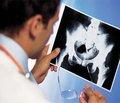 Фактори ризику виникнення синдрому фемороацетабулярного конфлікту в дітей тапідлітків при хворобі Легга — Кальве — Пертеса