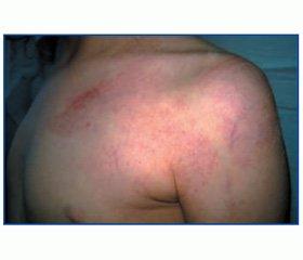 Клинический случай редкой наследственной патологии — синдром Клиппеля — Треноне —  Вебера — Рубашова в практике врача-педиатра