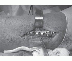 Використання напруженої петлі при хірургічному лікуванні переломів кісточок із пошкодженням міжгомілкового синдесмозу
