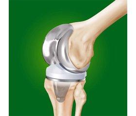 Лечение нагноений области эндопротезирования коленного сустава