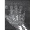 Случай сочетания гипоплазии гипофиза и ахондроплазии у шестилетнего мальчика