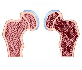 Osteoporosis in Сhildren with Itsenko — Cushing Disease: Etiology, Pathogenesis, Diagnosis