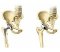 Femoral geometry and FRAX indices as independent risk factors for hip fractures inUkrainian patients