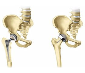 Femoral geometry and FRAX indices as independent risk factors for hip fractures in Ukrainian patients