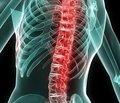 Хвороба Бехтєрєва: причини та форми