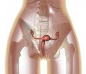 Результаты применения фармакологического   препарата экстракта плаценты при экстракорпоральном оплодотворении у женщин,   перенесших хронические воспалительные заболевания органов малого таза